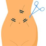 Online Doctor Consultation - General & Laparoscopic Surgeon