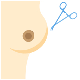 Online Doctor Consultation - Breast surgery